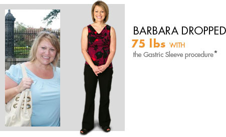 Barbara lost 75 lbs. with weight loss surgery.