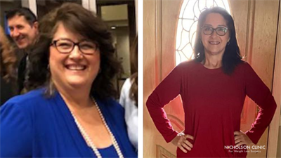 before and after photo showing weight loss of gastric bypass patient