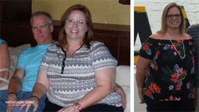 before gastric sleeve surgery