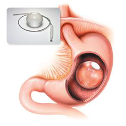 Gastric Balloon Dallas Texas Doctor Non Invasive Weight