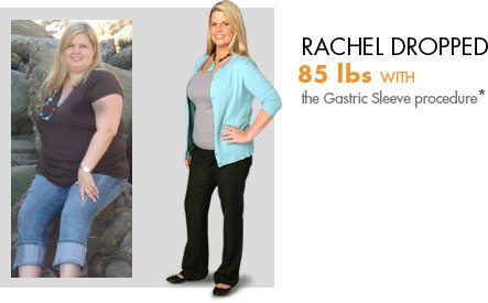 Rachel lost 85 lbs. with weight loss surgery.