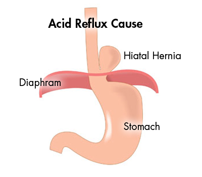 Image result for Acid Reflux - Medical Surgery Options For Acid Reflux Treatment